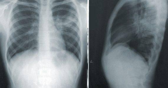 plămân afectat de COVID-19