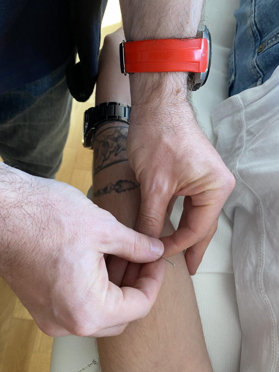 Octavian Sbârnă aplicând acele de acupunctură în timpul unei ședințe de terapie