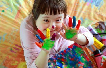 Copiii cu Sindrom Down